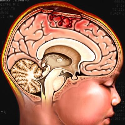 Перелом костей черепа, гематома