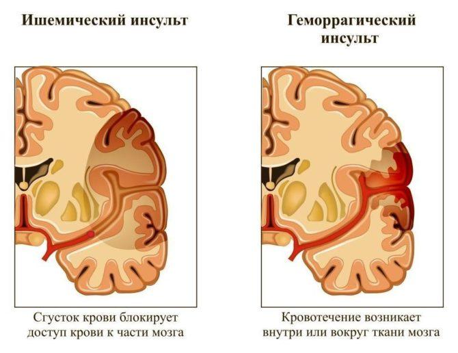 Различие ишемического и геморрагического инсульта