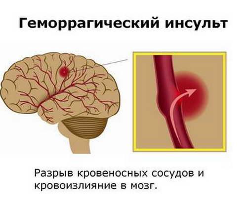 Разрыв сосуда головного мозга