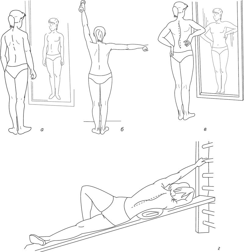Лечебная гимнастика при кифосколиозе грудного отдела позвоночника
