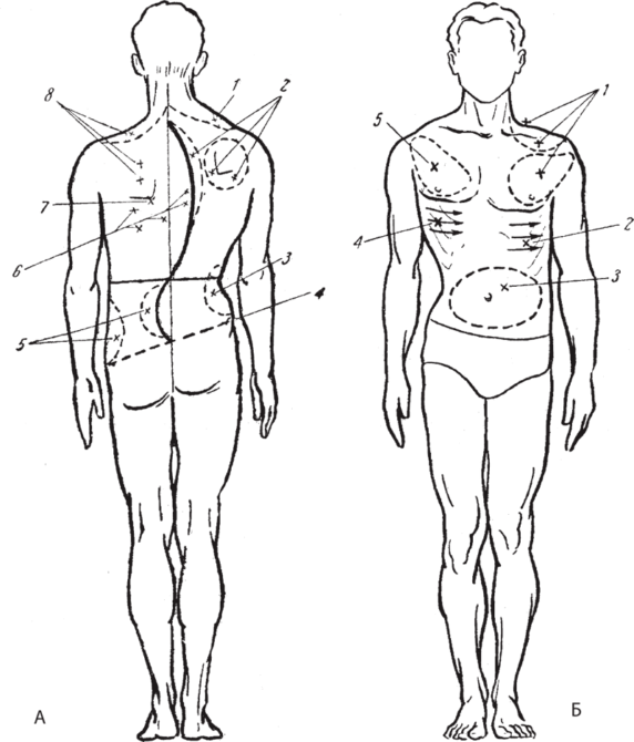 схема зон массажа