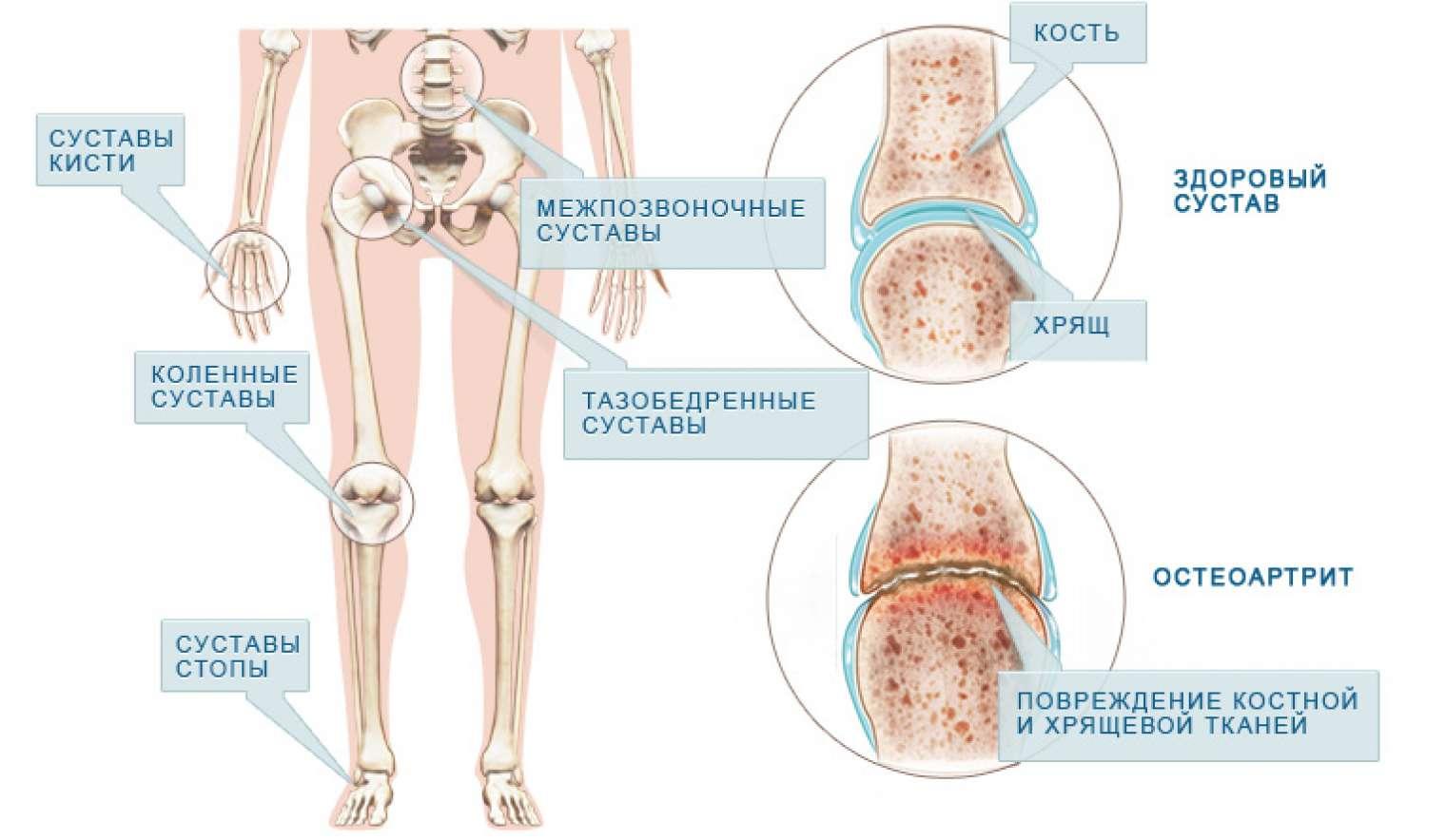 Воспаление тазобедренного сустава схема лечения