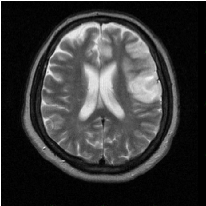 Томографическое изображение очага ишемического инсульта