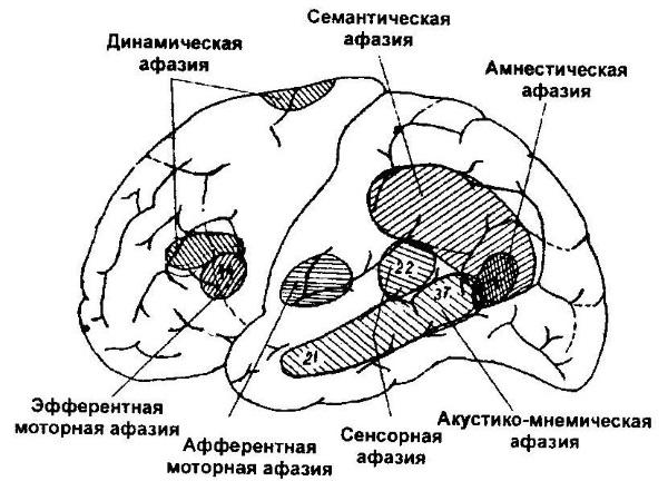 Виды афазий
