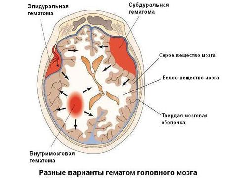 Виды кровоизлияний