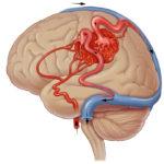 Артериовенозная мальформация (АВМ)