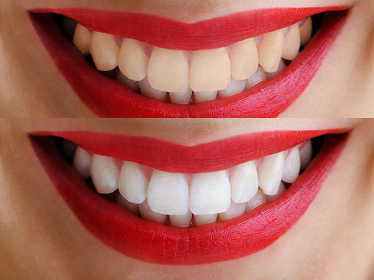Белый налёт на зубах. Норма или патология?