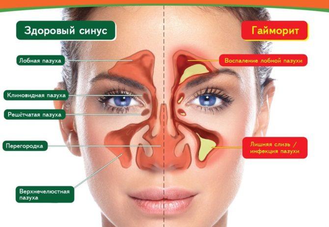 Здоровый синус (слева) и гайморит (справа)