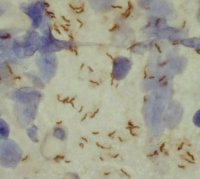 Хеликобактер под микроскопом