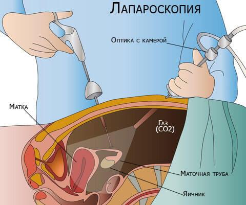 Лапароскопическая операция при кисте
