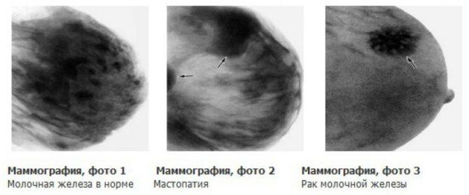 Маммографическое изображение молочной железы