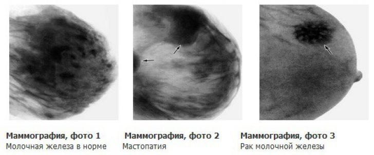 Заключения маммографии молочной железы