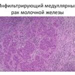 Медуллярный рак молочной железы