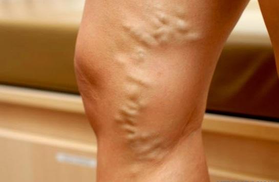 Нога, поражённая варикозом
