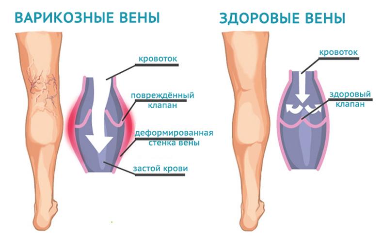 Узи мышц нижних конечностей