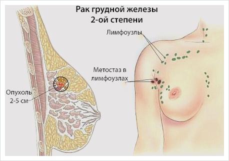 Рак молочной железы 2 стадии