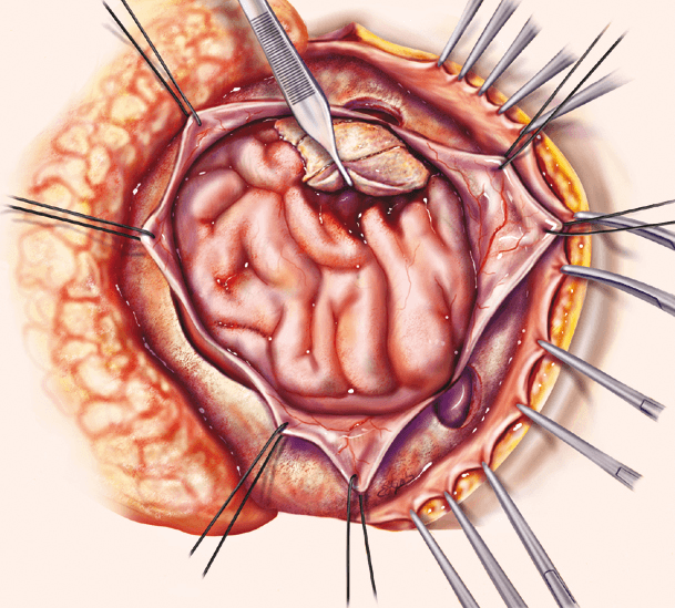 Открытая операция на головном мозге