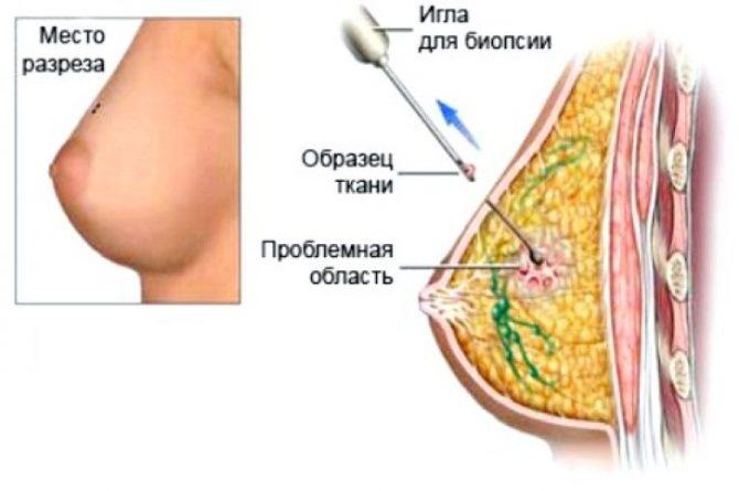 Схема биопсии рака молочной железы