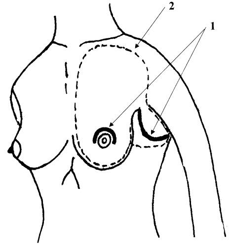 Схема операции на молочной железе