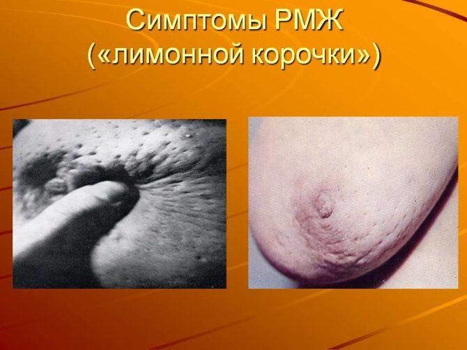 Симптом «лимонной корки»
