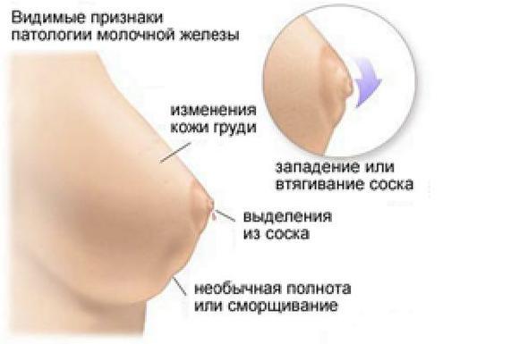 Симптомы рака молочной железы 2 стадии