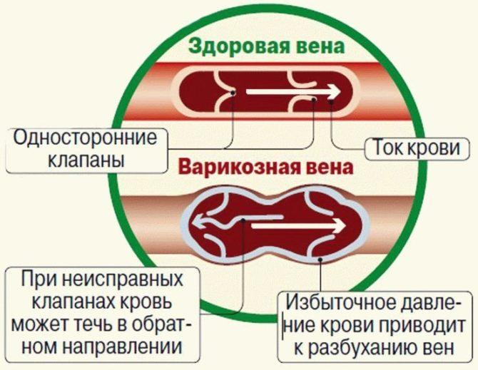 Сосуды при посттромбофлебитической болезни