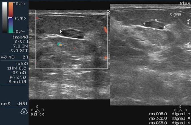 Ультразвуковая картина рака молочной железы