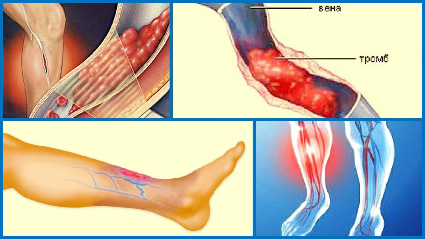 Посттромбофлебитический синдром нижних конечностей: лечим упорно, методично, грамотно