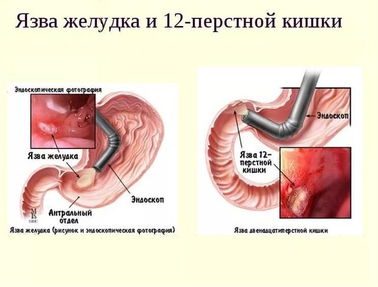 Лечение язвы двенадцатиперстной кишки: медикаментозные препараты и народные средства, хирургическая операция, диета, физиотерапи