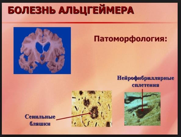 Нейрофибриллярные сплетения и бета-амилоидные (сенильные) бляшки