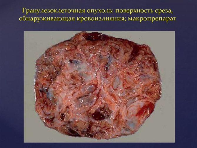 Гранулёзоклеточная опухоль — макропрепарат