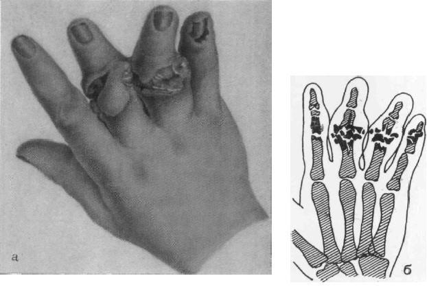 Кисть с открытым переломом среднего и безымянного пальцев