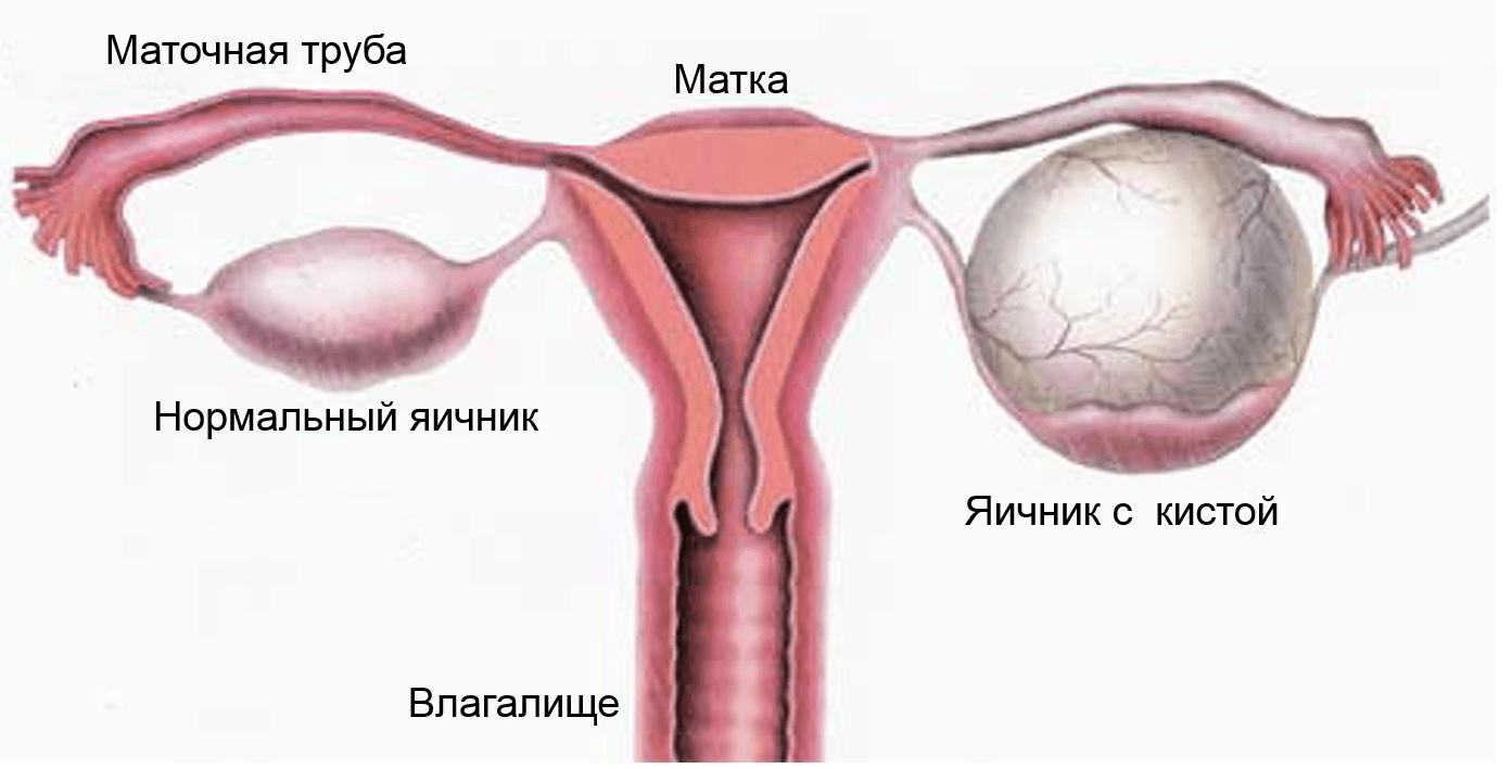 Киста яичника у беременной женщины 66