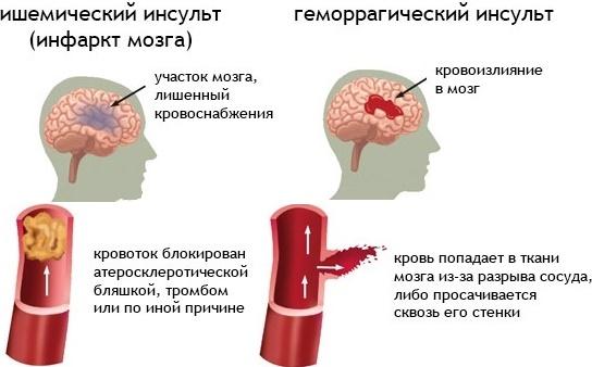 Отличия ишемического и геморрагического инсульта