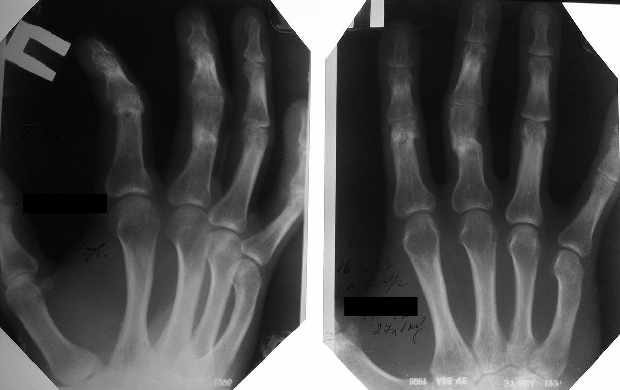 Перелом пальца на руке: особенности травмы