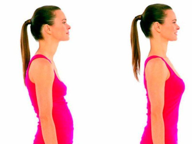 лечебная физкультура при повышенном холестерине