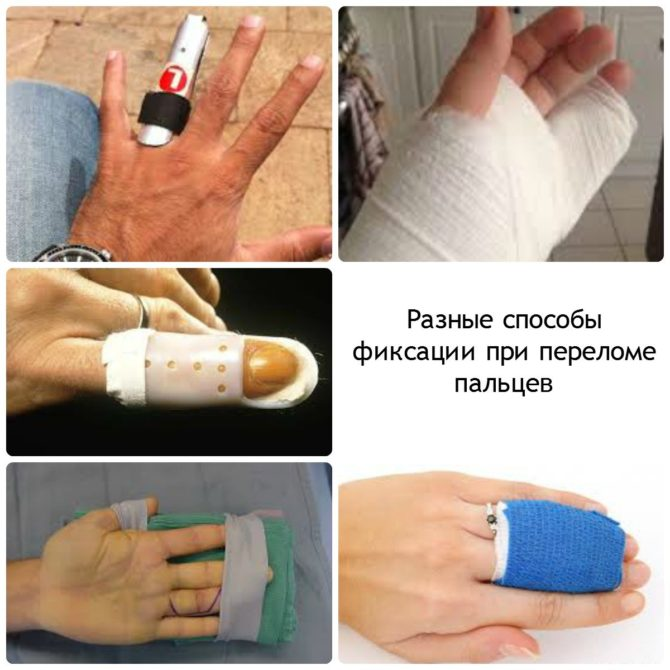 Способы фиксации пальца