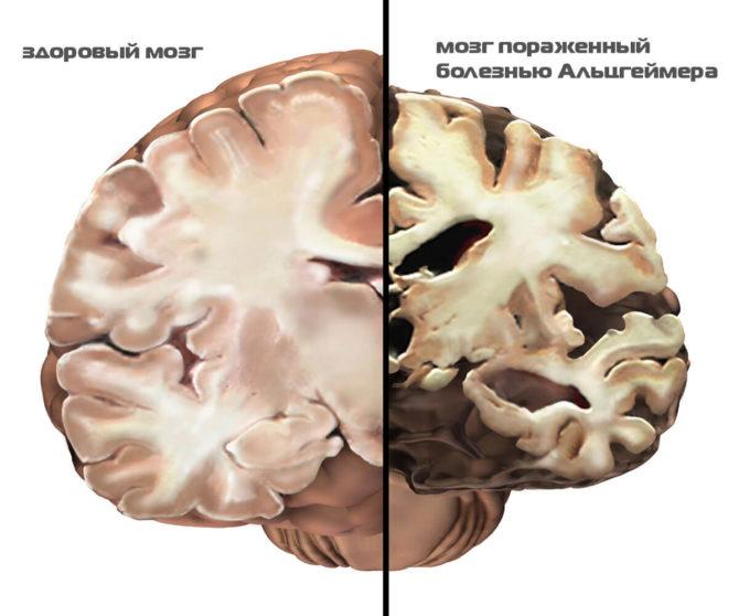 Уменьшение мозга при болезни Альцгеймера