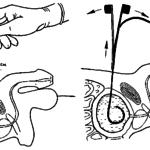 Эпицистостомия (схема)