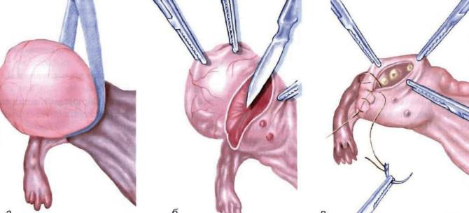 Иссечение опухоли яичника (схема)