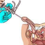 Схема цистоскопии