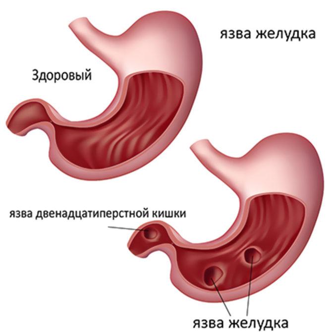 Язвенные дефекты стенки желудка и двенадцатиперстной кишки