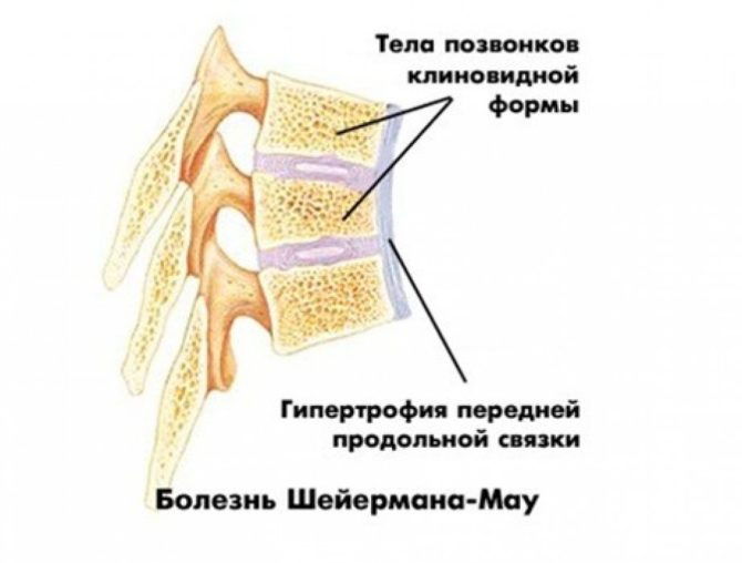 Анатомия позвонков при болезни Шейермана-Мау