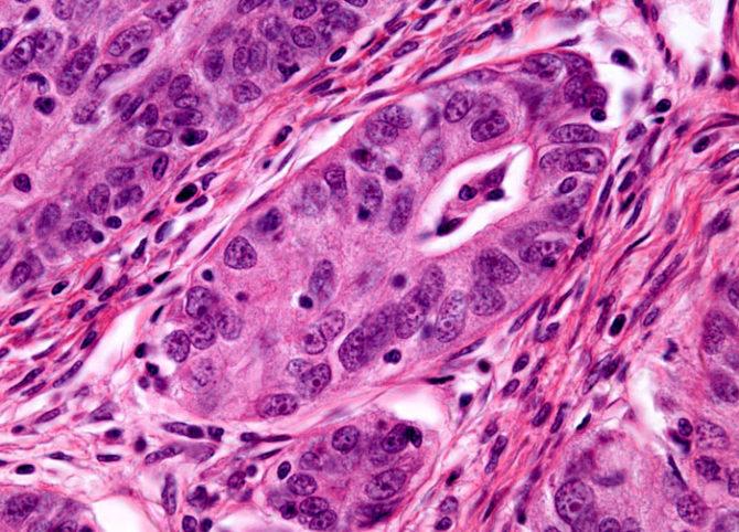 Цистаденокарцинома яичника под микроскопом