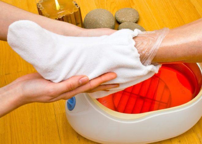 Парафинотерапия для ноги после перелома