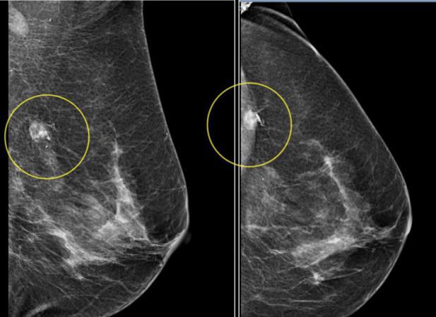 Рентгенологическое изображение ткани молочной железы