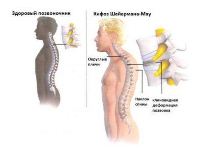Схематическое изображение избыточного грудного кифоза при болезни Шейермана-Мау