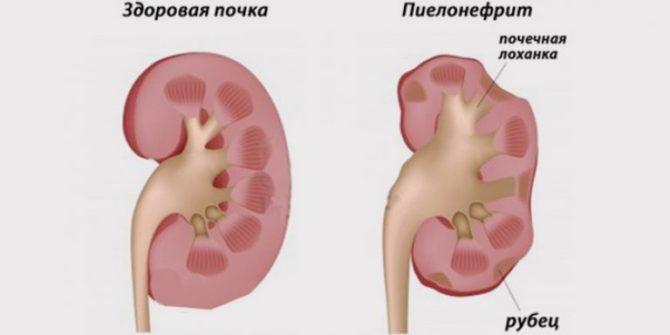 Состояние почки в норме и при пиелонефрите