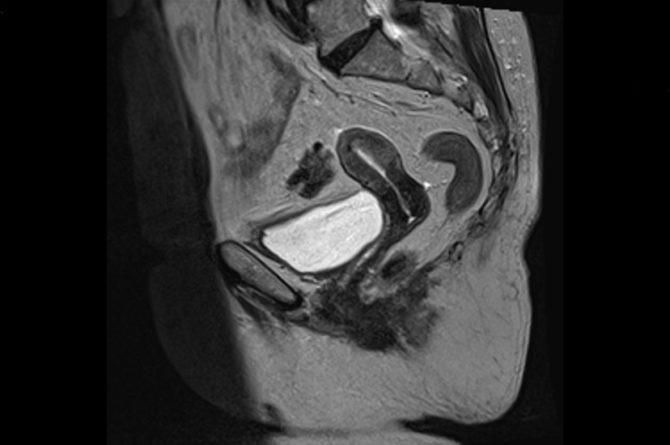 Томографическое изображение органов малого таза у женщины