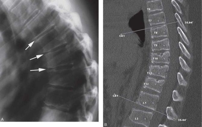 Томографическое изображение позвоночника при болезни Шейермана-Мау